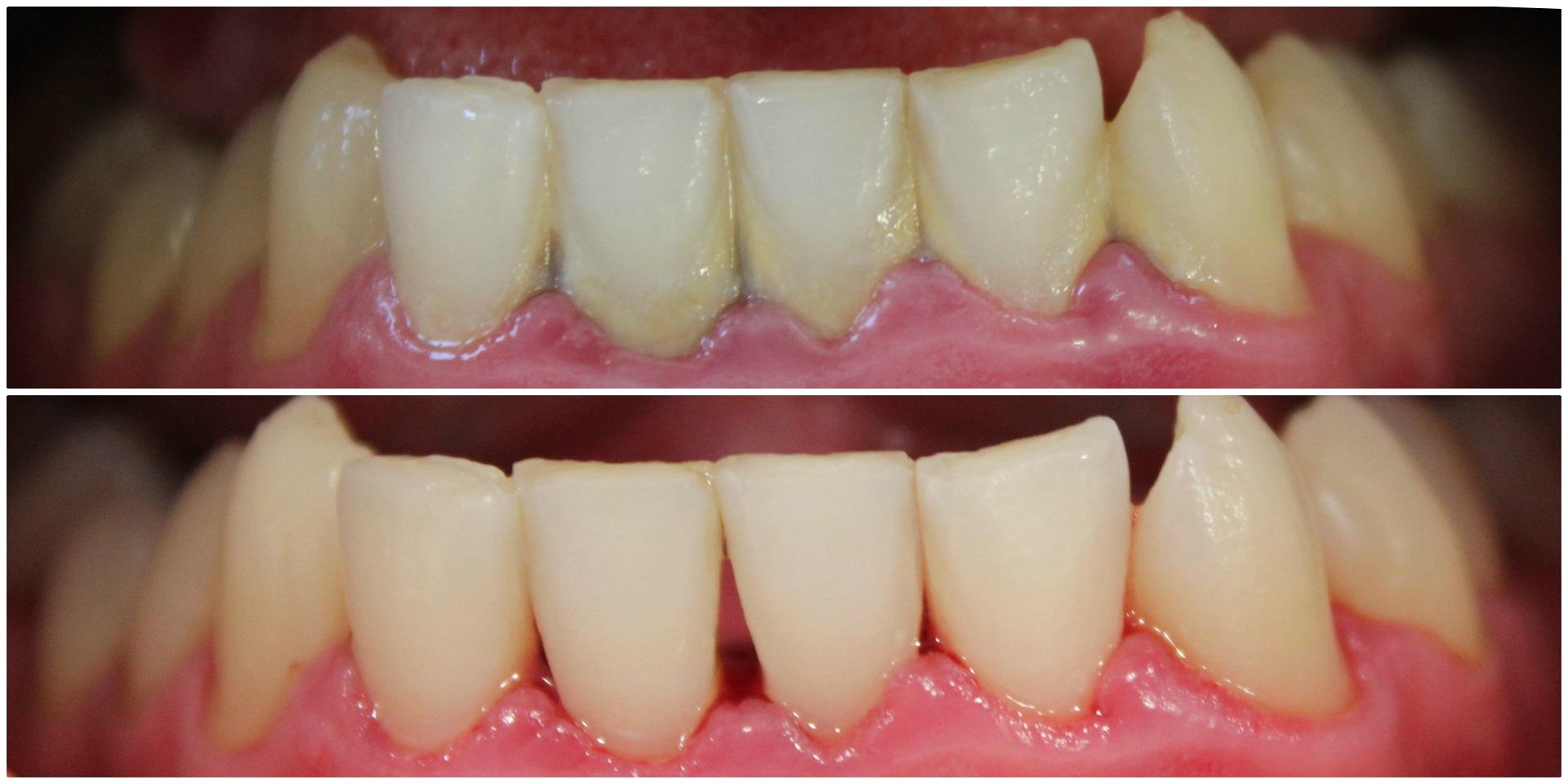 Prieš (nuotrauka viršuje) ir po profesionalios burnos higienos.