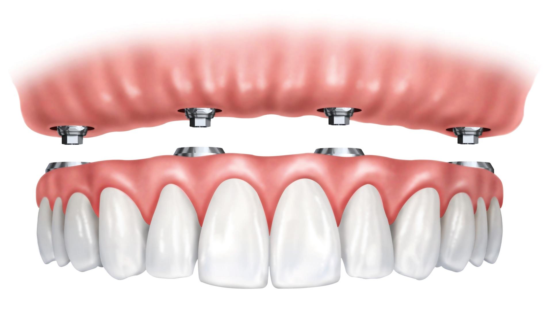 Fiksuota pasaga ant 4 implantų.