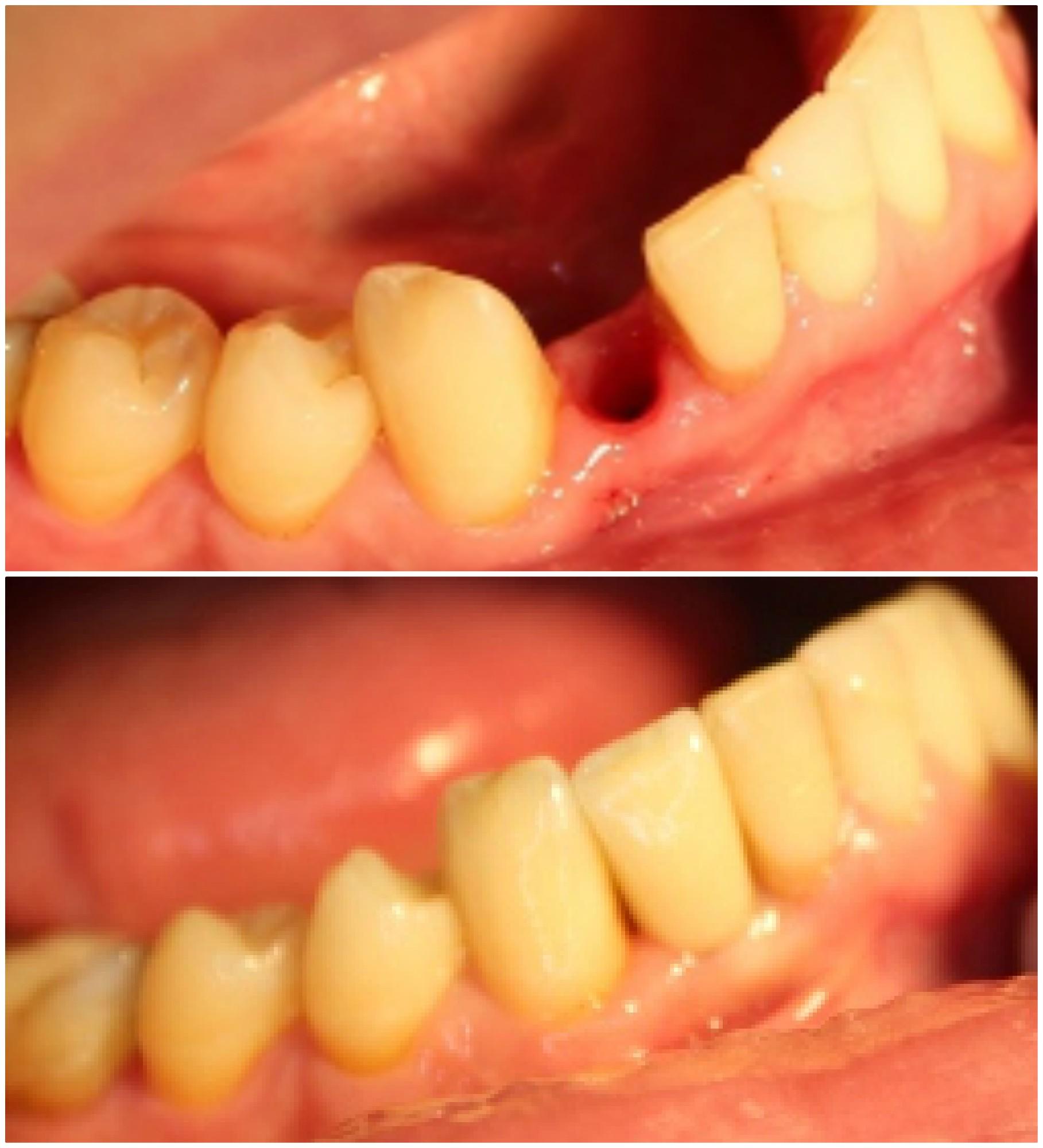 Prieš ir po dantų implantacijos.