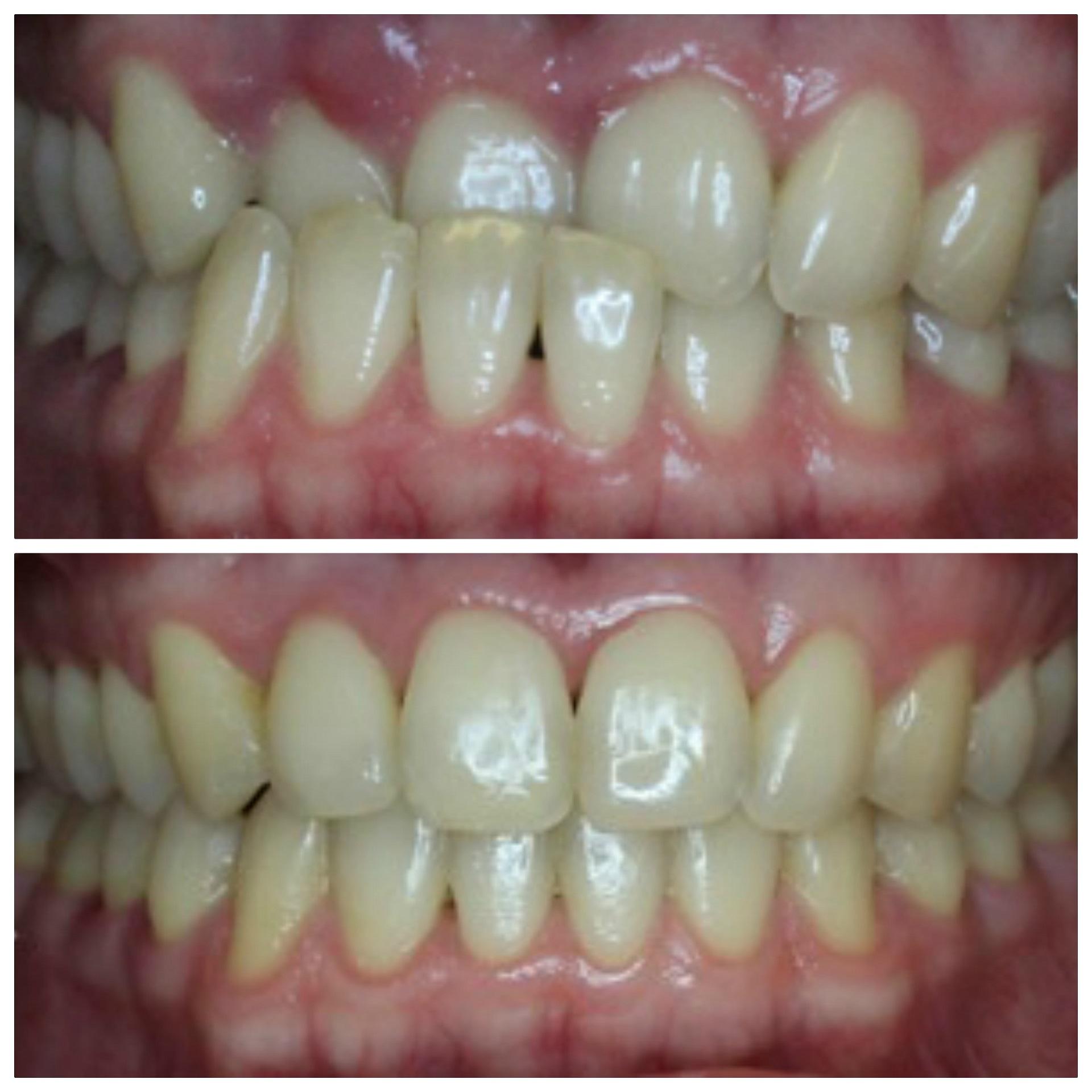 Prieš (nuotrauka viršuje) ir po ortodontinio gydymo.